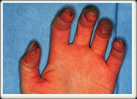 関節リウマチ以外の重要なリウマチ性疾患6. 強皮症 | 道後温泉病院